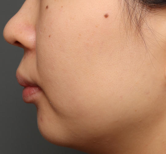 30代女性の肌管理毛穴スリークスキン(ダーマペン4) Before 症例写真