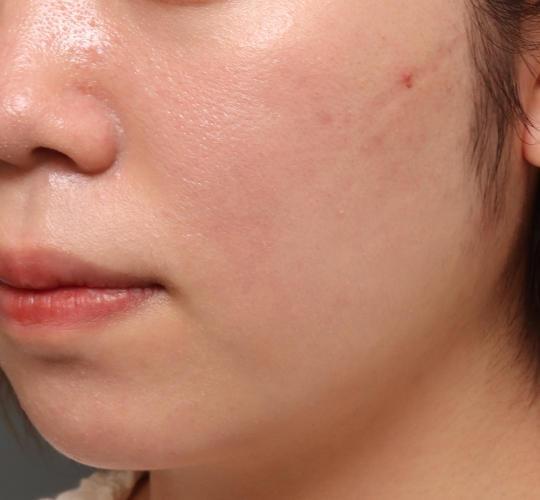 20代女性の肌管理毛穴スリークスキン(ダーマペン4) After 症例写真