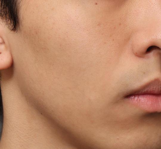 20代男性のメーラーファット除去 After 症例写真