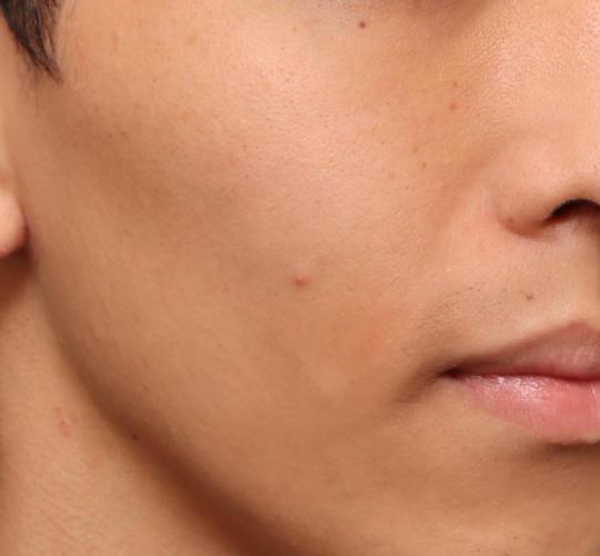 20代男性のメーラーファット除去 Before 症例写真