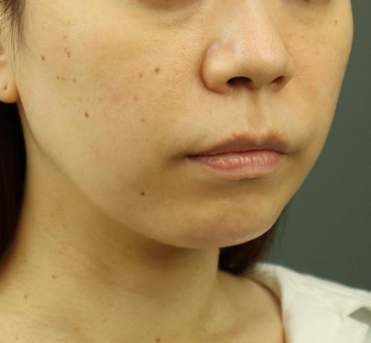 30代女性のヒアルロン酸注射(アゴ形成) After 症例写真