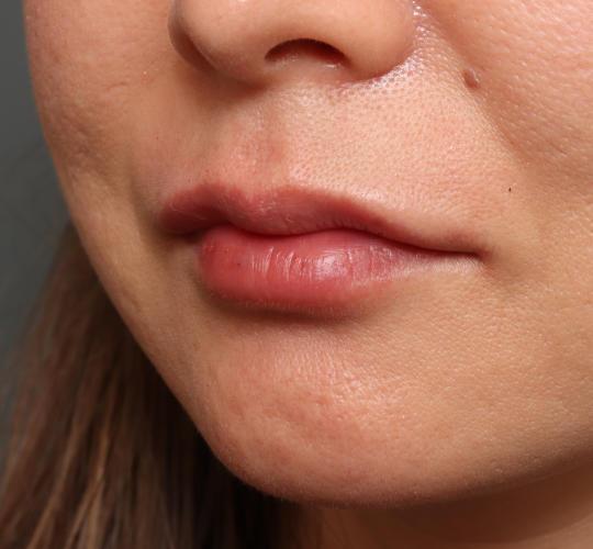 40代女性のヒアルロン酸注射(唇) After 症例写真