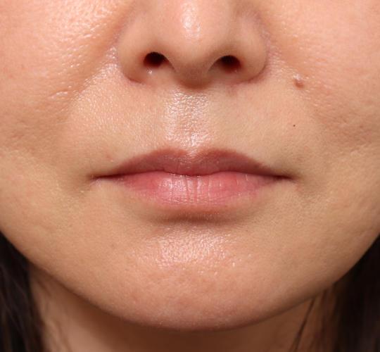 40代女性のヒアルロン酸注射(唇) Before 症例写真