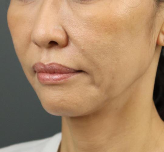 50代女性のテスリフト After 症例写真