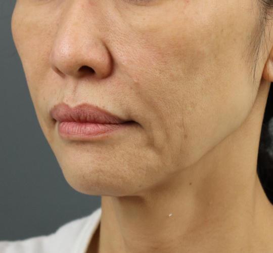 50代女性のテスリフト Before 症例写真