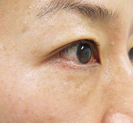 40代女性のPRP皮膚再生療法 After 症例写真