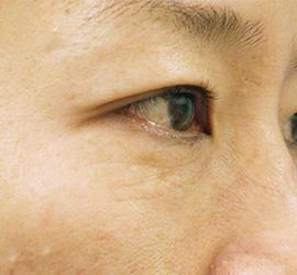 40代女性のPRP皮膚再生療法 Before 症例写真