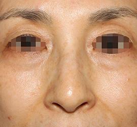 50代女性の真皮線維芽細胞療法 After 症例写真