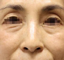 50代女性の真皮線維芽細胞療法 Before 症例写真