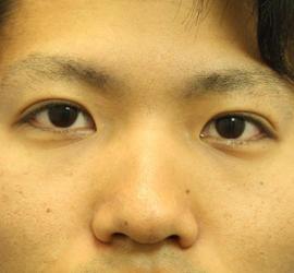 20代男性の二重埋没法 After 症例写真