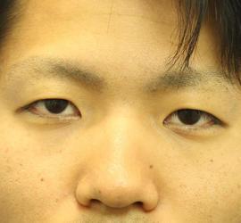 20代男性の二重埋没法 Before 症例写真