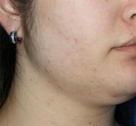 20代女性の美肌再生ピーリングコース After 症例写真