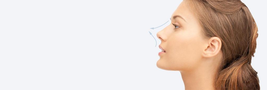 ボトックス(アップノーズ) botox-nose
