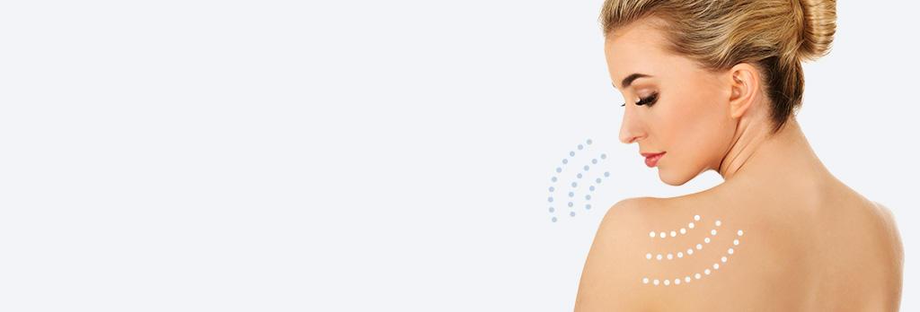 ボトックス(美肩・肩こり解消) botox-shoulder