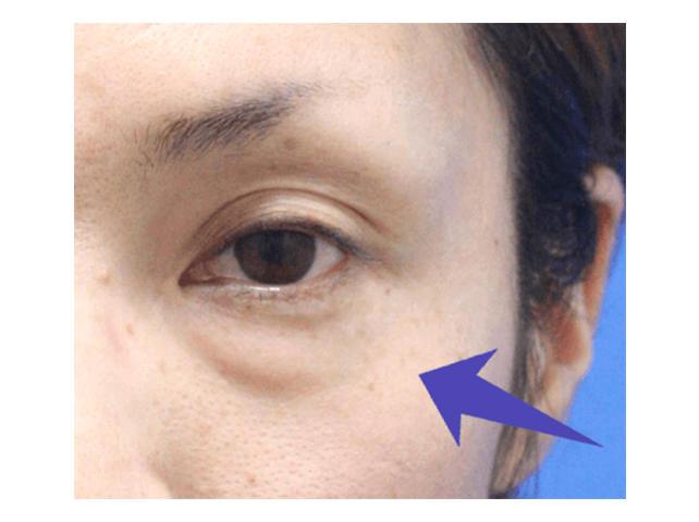 目の下の脱脂症状
