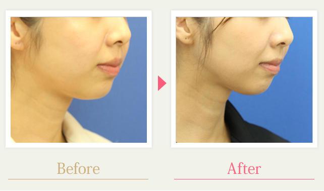 顔の脂肪吸引:症例写真