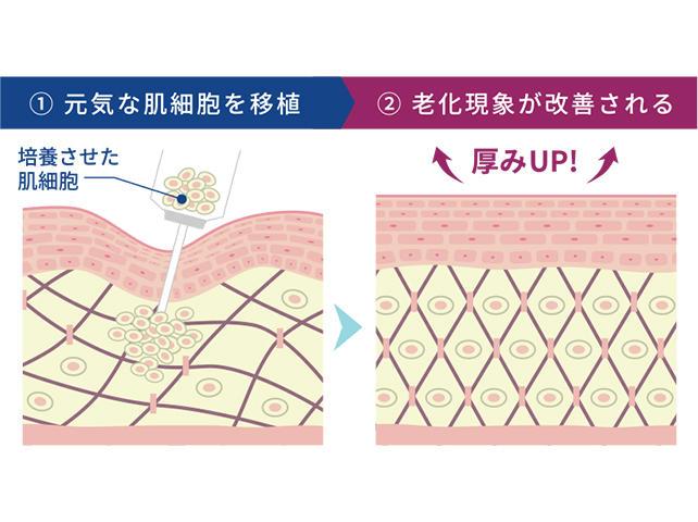 肌細胞の移植