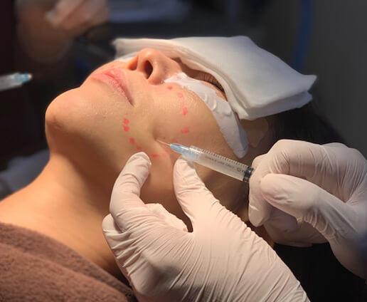 真皮線維芽細胞移植