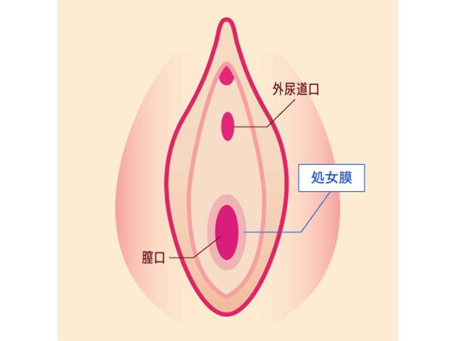 処女膜の様子