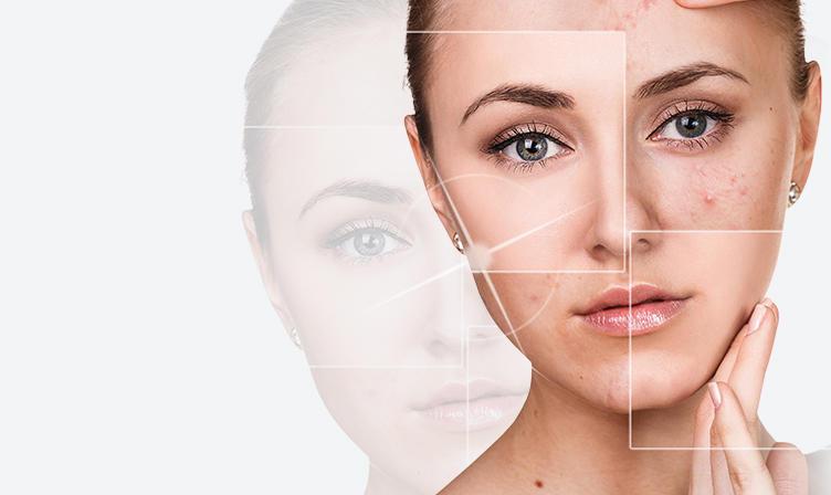 小林式ニキビ治療法 kobayashi-acne