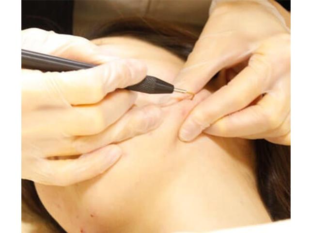 小林式ニキビ治療法