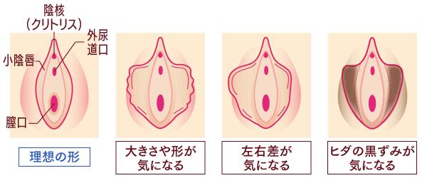小陰唇画像一覧