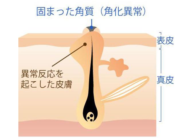 毛孔性苔癬フラクセル