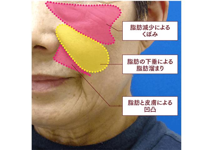 老化現象の説明