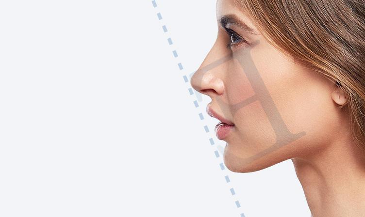 顎プロテーゼ(顎整形) prothese