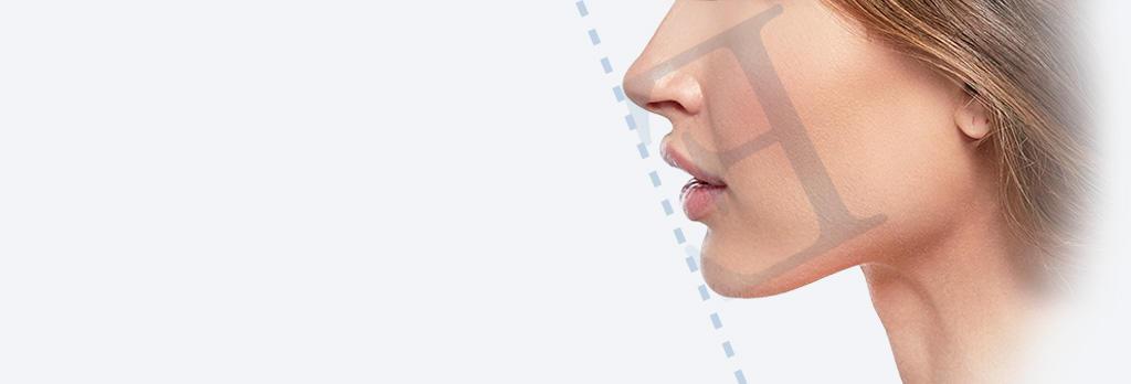 アゴプロテーゼ(アゴ整形) prothese
