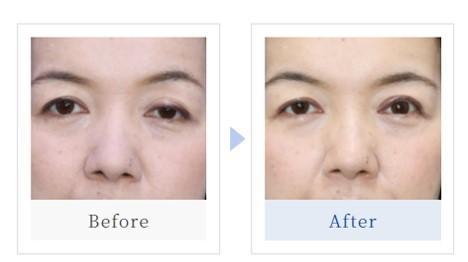 眼瞼下垂:症例写真