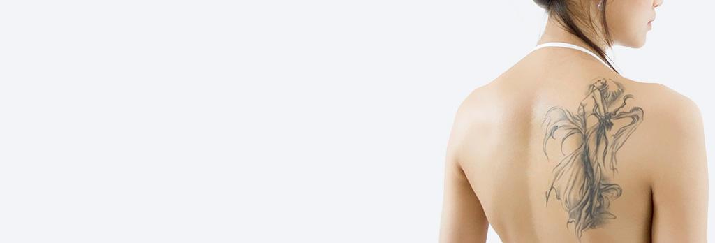 タトゥー除去(レーザー除去法) tatoo-laser
