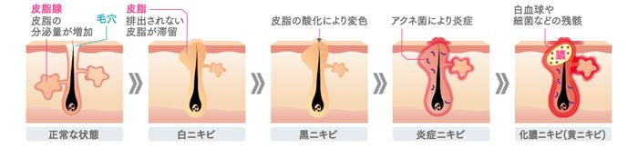 ニキビ治療プロセスイメージ