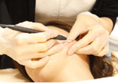 小林式ニキビ治療法画像