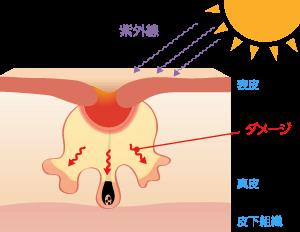炎症した赤ニキビが悪化したり、紫外線や指でつぶすなどの強い刺激によってダメージが深層まで及ぶと、炎症後の色素沈着や赤みが肌深層に残ってしまったり、コラーゲンの変性や異常増殖によって皮膚がクレーターのような凸凹した状態となります。これがニキビ跡です。