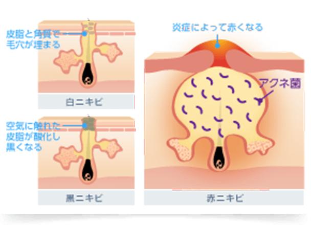 皮脂と角質が毛包内に埋もれ毛穴が塞がった状態の白ニキビや、毛穴が開き皮脂が酸化した状態の黒ニキビができます。毛穴に詰まった皮脂に細菌が繁殖すると炎症が起き、赤く腫れ熱を帯びた赤ニキビへと悪化します。