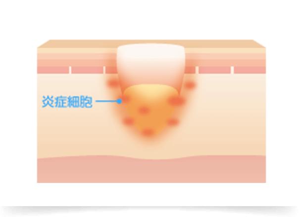 炎症がさらに悪化し、炎症が周囲の組織に波及すると、破壊された部分にはたくさんの炎症細胞が集まってきます。真皮内に瘢痕が作られ拘縮を起こし、この瘢痕の広がりによっていわゆる「クレーター・アクネスカー」と言われる皮膚の凹凸ができます。