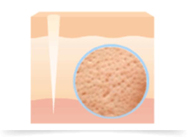 ニキビ炎症後、毛穴の開きに悩んでいる方がいますが、その症状は毛穴の開きではなく、深層までダメージが及んだニキビ跡の可能性があります。元に戻らなくなった目立った毛穴は、凹凸/クレーターによるニキビ跡と同様の症状になります。