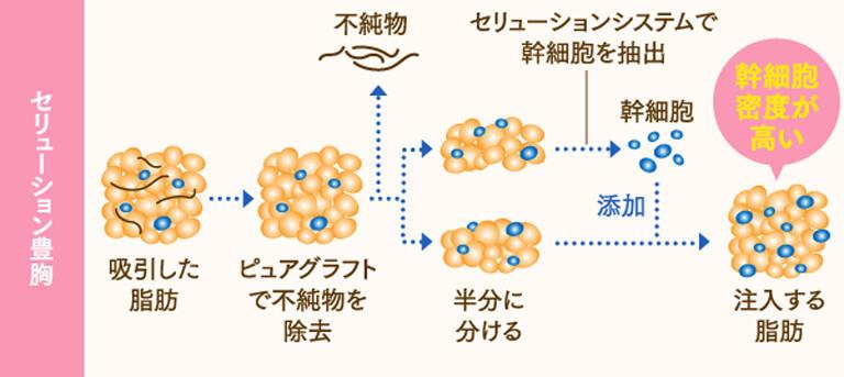 セリューション豊胸は、吸引した脂肪をピュアグラフトで不純物を除去し、さらにセリューションシステムで幹細胞を抽出してから再度添加することによって、より幹細胞密度が高い脂肪を注入することができる施術法です。