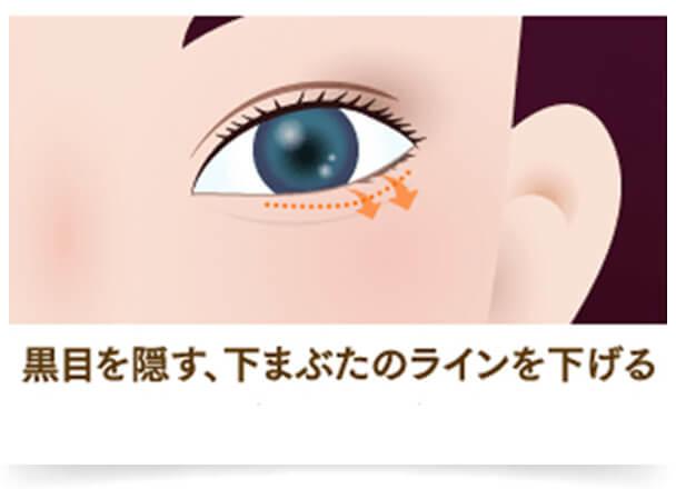 つり目や小さい目を気にしている方におすすめの治療法『たれ目・でか目整形』は、大きな「たれ目」になることができます。目が大きくなるだけでなく、顔全体の印象がふんわり優しくなり女性らしさがアップします。形成術で手頃な『ヒアルロン酸涙袋』も目の下の涙袋を形成することで大きくかわいらしい目元へ導きます