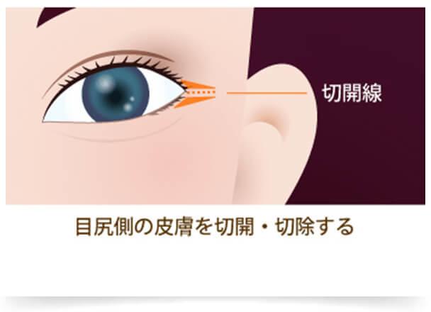 「目頭切開」は目の内側は切開し、「目尻切開」は目の外側を切開することで、目力がアップ。どちらも「目」を大きくするだけでなく、顔全体のバランスを整えることもできるので、小顔効果も期待できます。