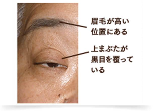 黒目を覆い隠すように上まぶたがたるんでいる場合、眼瞼下垂(がんけんかすい)の可能性があります。 眼瞼下垂は、上まぶたを引き上げる筋肉の力が衰えることで起こる眼筋疾患で、目つきが悪くなる、眉間・額にシワができるなど外見的トラブルが生じます。 また、視野が悪くなり、頭痛や肩こりを引き起こすなど、日常生活にも支障がでることもあります。