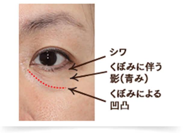 加齢とともに頬の脂肪は下へ下へと下垂します。それに伴い目の下の脂肪はボリュームを失うため、目の下にくぼみができます。この目の下のくぼみと頬との境界に凹凸ができ、凹凸による陰影によって目元の印象も暗くなります。
