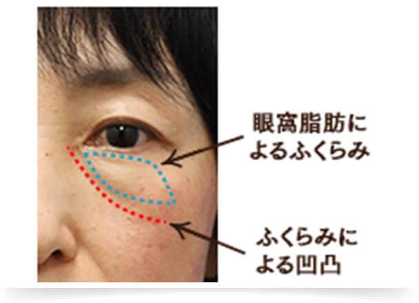 目の下のふくらみは、眼球の周りにある脂肪が飛び出したものです。加齢とともに頬の脂肪が下垂するように、眼球も垂れ下がってきます。すると、眼球周りにある眼窩脂肪(がんかしぼう)が押し出され、目の下のふくらみとなって現れます。この飛び出した眼窩脂肪による凹凸によって、陰影が生じます。