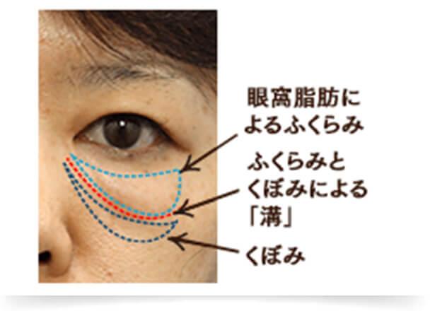 眼球と頬の脂肪の下垂が同時に進行し、「ふくらみ」と「くぼみ」が混在しているタイプです。混合タイプは「ふくらみ」と「くぼみ」のどちらか片方のみを解消しても目の下の凹凸は開所されず、場合によっては目の下のクマが濃くなってしまうこともあります。そのため、目の下のたるみ状態を的確に見極め、「ふくらみ」と「くぼみ」を同時に解消することが重要となります。