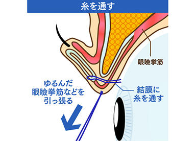 細い糸をつかってゆるんだ筋肉を縫い縮めることで、上まぶたを開く力を強くする治療法です。