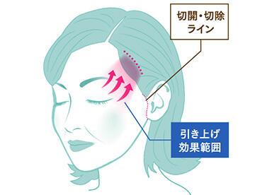 側頭部を切開して、たるんだ皮膚を除去し、上まぶたのたるみを解消する治療法です。