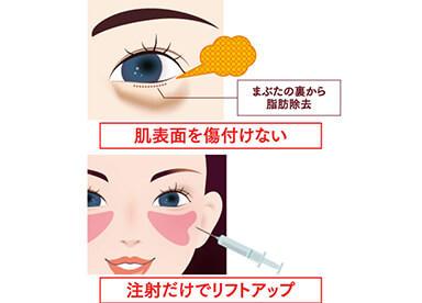 突出した眼窩脂肪を取り除く「目の下の脱脂」とくぼんだ目の下にボリュームを補い整える「脂肪注入」をセットにした複合治療です。「ふくらみ」と「くぼみ」を同時に解消することができる治療法です。