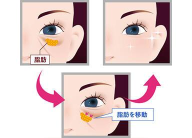 目の下のふくらみの原因となる「眼窩脂肪」を目の下のくぼみに移動させることで、目の下のふくらみとくぼみによって形成されていた目の下のたるみを解消する治療法です。