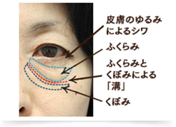 目の下のふくらみやくぼみだけでなく、小ジワや皮膚のたるみが目立つタイプです。皮膚のたるみタイプは、目の下のたるみ症状がかなり進行している状態で、眼窩脂肪や皮膚を支える眼輪筋(がんりんきん)がゆるんでいるのが原因です。軽度な皮膚のたるみならレーザー治療、かなりたるみが進行したケースでも、脂肪、眼輪筋、皮膚の3つにアプローチする治療を行うことで、目の下のたるみを解消することが可能です。